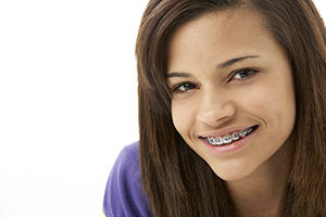 braces in Villa Park IL at Villaz Dental