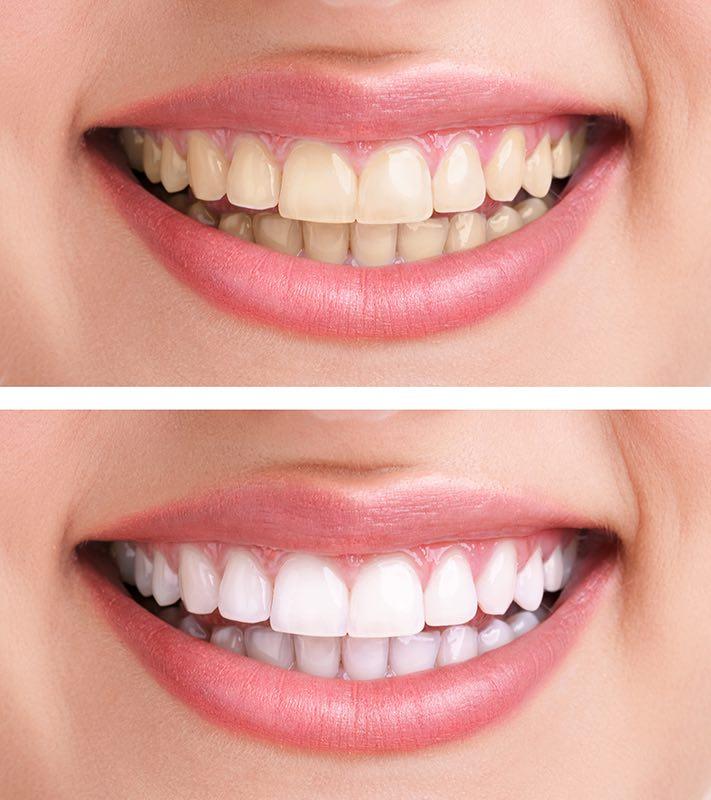 dental implant Villa Park at Villaz Dental